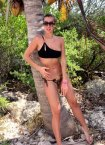 Sunburn-